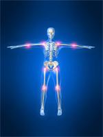 yoga  arthritis yoga for arthritis yoga and arthritis